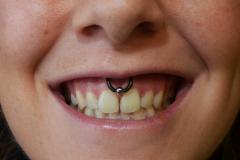 12g-Smiley-Healed