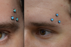 Triple-Opal-Anchors-above-Brow
